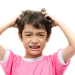 Head lice in children